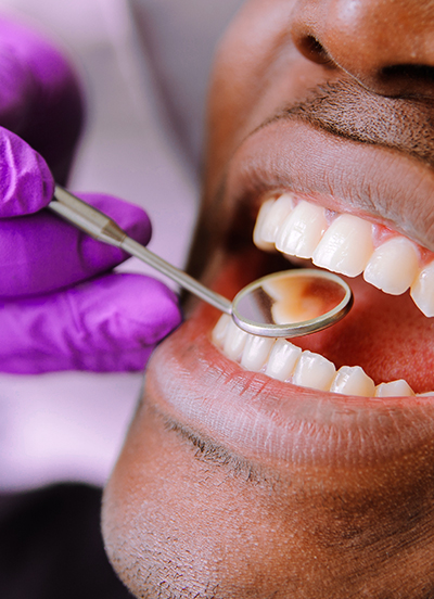 contact us, Fillings, Bondings, Root Canals & Extractions
