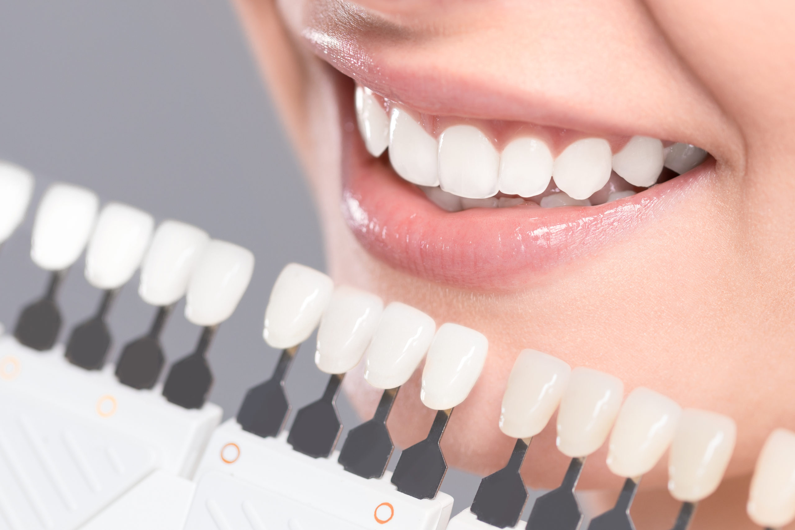 Silver Fillings, crowns, dental services