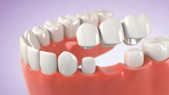 bridge, crowns, dental services