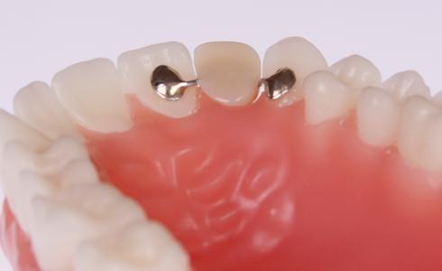 crowns, dental services