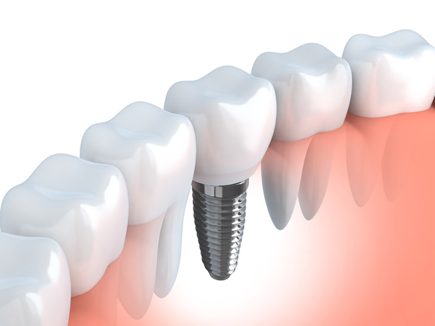 dental implants when inside the mouth