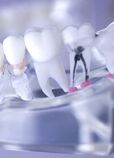 Root Canal Treatment, Fillings, Bondings, Root Canals & Extractions