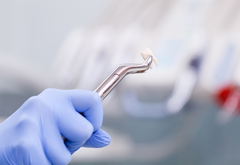 tooth extractions dental, Fillings, Bondings, Root Canals & Extractions